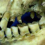 انسانهای اولیه هم دچار مشکلات دندان مشابه ما میگشتند